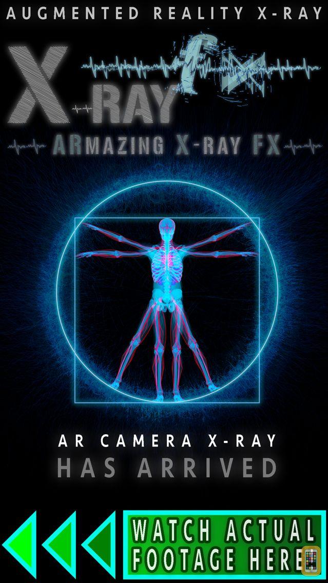 Screenshot - ARmazing X-Ray FX